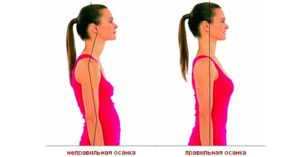 Нарушение осанки - первый шаг к формированию горба на спине