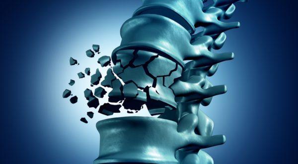 Самый сложный вид перелома - компрессионно-оскольчатый