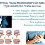 Грыжа грудного отдела позвоночника: симптомы