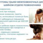Грыжа шейного отдела позвоночника: симптомы