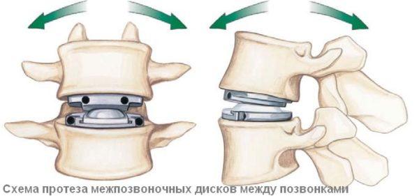 Замена диска имплантами применяется в самых тяжелых случаях заболевания