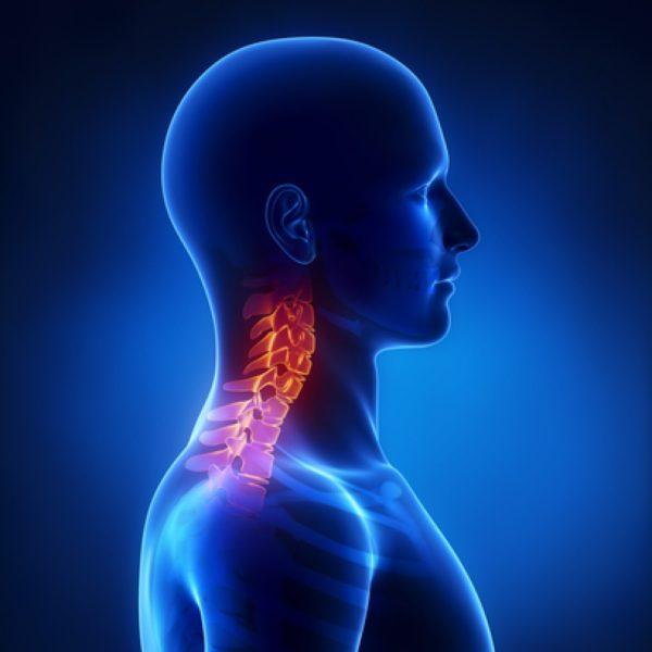 Завершается развитие унковертебрального артроза шейных позвонков полной утратой подвижности в этом отделе