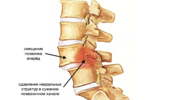 Смещение позвонков, вызванное травмой или поднятием тяжестей, приводит к защемлению нервных волокон и сосудов в позвоночном канале