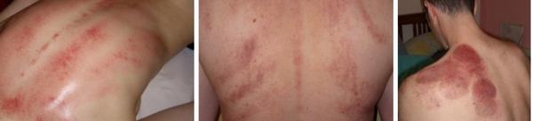 При частом проведении баночного массажа на коже могут оставаться пятна и кровоподтеки от банок