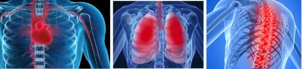 Последствия грудного остеохондроза больше всего сказываются на дыхательной и сердечно-сосудистой системе