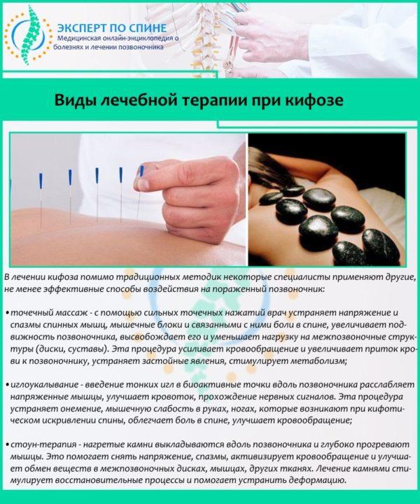 Виды лечебной терапии при кифозе