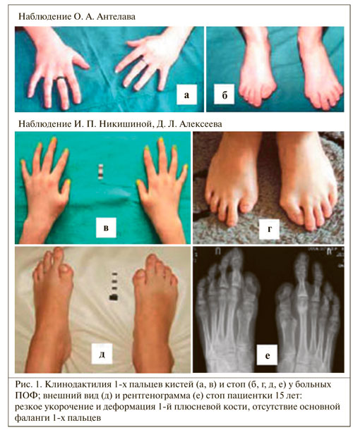 Внешний вид и рентгенограмма пациента с миозитом