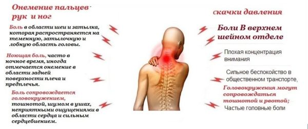 Возможные симптомы хондроза