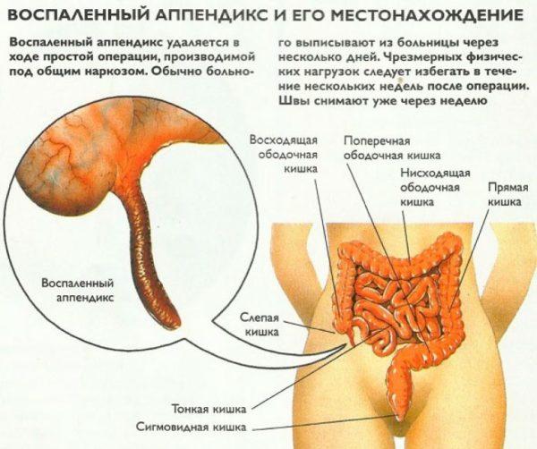 Воспалении аппендикса