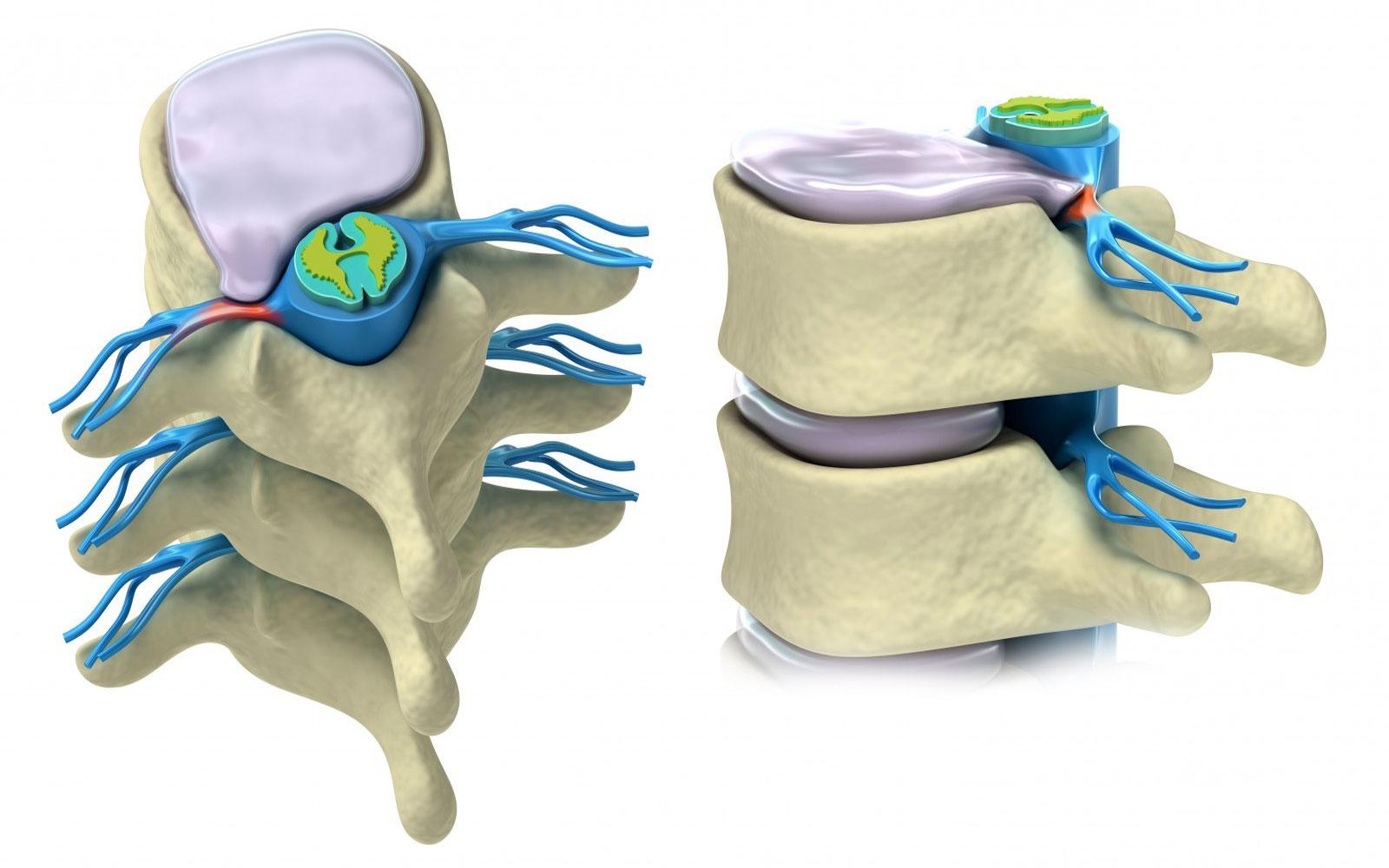 Признаки грыжи спины