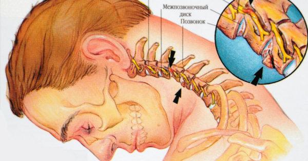 Даже небольшое сдавливание артерий внутри шеи приводит к проблемам с мозгом