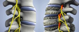 Дегенеративно-деструктивные заболевания позвоночника