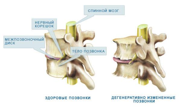 Как изменяются части позвоночника при остеоартрозе