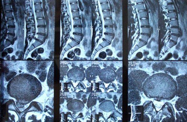 МРТ-снимок поясничного отдела позвоночника