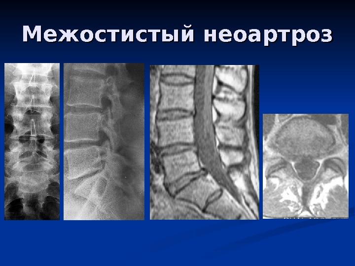 Неоартроз позвоночника что это такое и лечение
