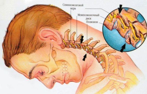 Механизм заболевания