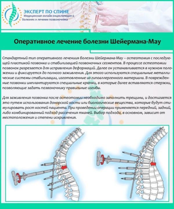 Оперативное лечение болезни Шейермана-Мау