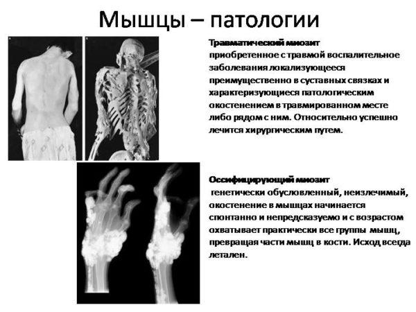 Описание оссифицирующего миозита