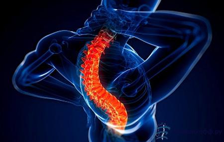 Остеоартроз позвоночника - причины, симптомы, лечение