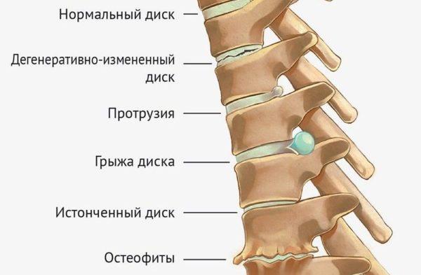 Остеохондроз прогрессирует, состояние межпозвоночных дисков постепенно ухудшается