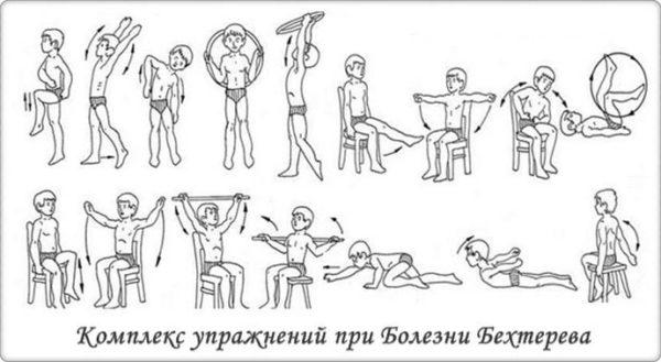 Полезные упражнения при болезни Бехтерева
