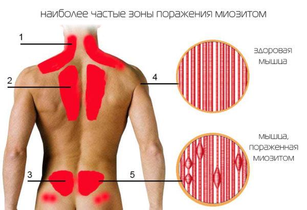 Пораженные мышцы миозитом изнутри