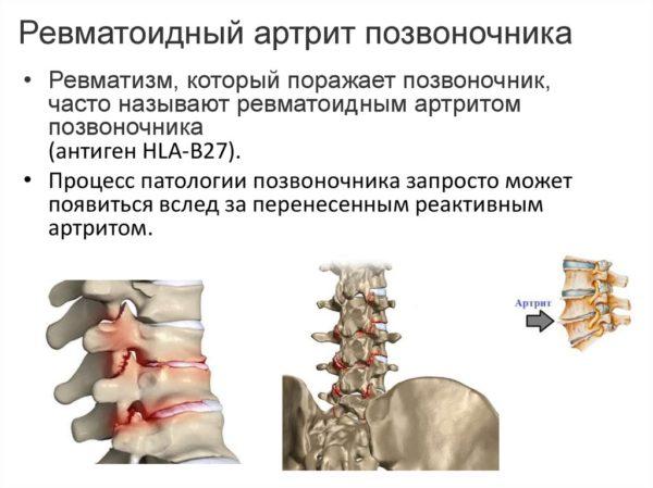 Ревматоидный артрит позвоночника