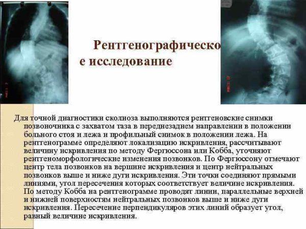 Рентгенографическо е исследование