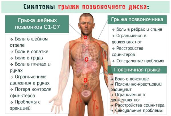 Симптомы грыжи позвоночного диска