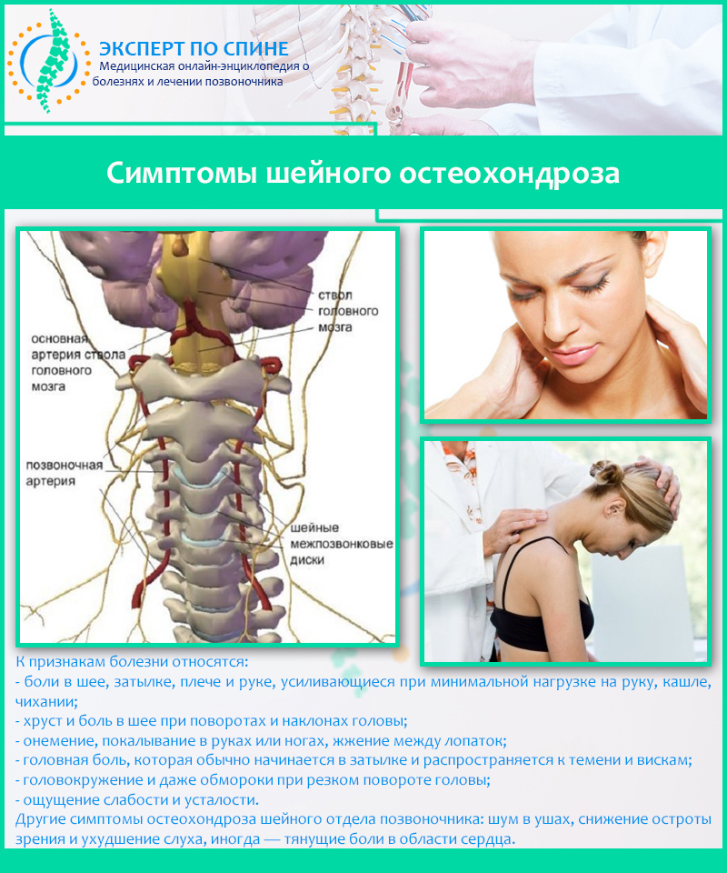 Как самостоятельно определить остеохондроз шейного отдела фото