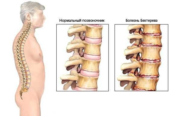 Состояние позвоночника при болезни Бехтерева