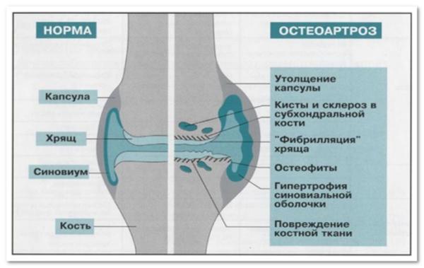 Состояние сустава при остеоартрозе