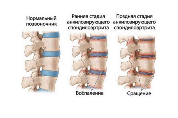 Стадии деформации позвоночника при болезни Бехтерева