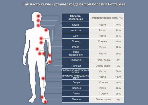 Суставы, наиболее часто страдающие при болезни Бехтерева