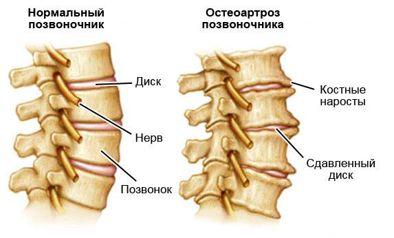 Схематичное изображение остеоартроза позвоночника