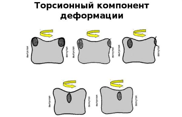 Торсионный компонент деформации