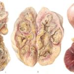 Туберкулезмочеполовой системы