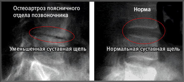 Уменьшение суставной щели при остеоартрозе позвоночника