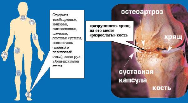Части тела, наиболее часто страдающие от остеоартроза