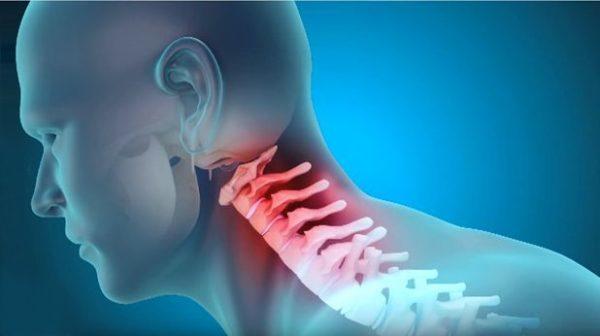 Шейно-черепной синдром