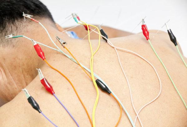 Электрорефлексотерапия