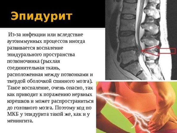 Эпидуральный шпаргалка неврология спинальный абсцесс