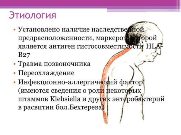 Этиология болезни Бехтерева