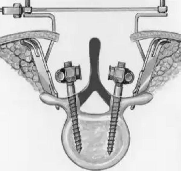 Схема введения винтов через дужки позвонка при транспедикулярной фиксации позвоночника. Серым цветом указана зона удаления дужки позвонка