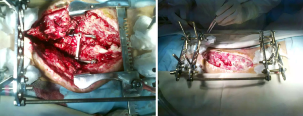 Санация очага инфекции, удаление погружной конструкции и фиксация поясничного отдела позвоночника аппаратом наружной транспедикулярной фиксации