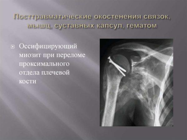 Оссифицирующий миозит при переломе проксимального отдела плечевой кости на рентгене