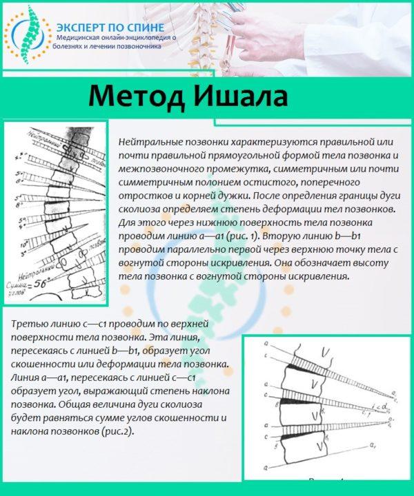 Метод Ишала