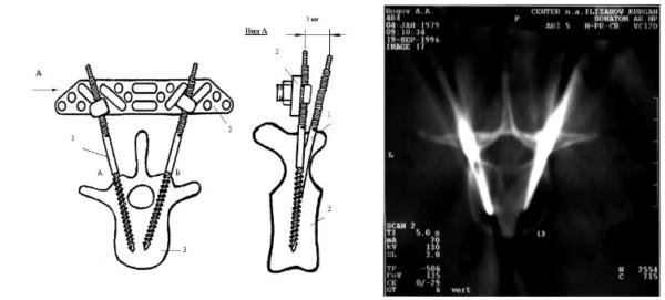 Проведение стержня-шурупа (схема; КТ: стержни-шурупы правильно введены в тело L3 позвонка)