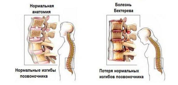 Болезнь Бехтерева - патология, характеризующаяся поражением позвоночных суставов и прилегающих к ним тканей
