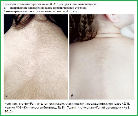 Спиралевидный рост волос на спине